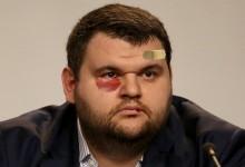 Фрогнюз: Делян Пеевски е бил пребит в Дубай